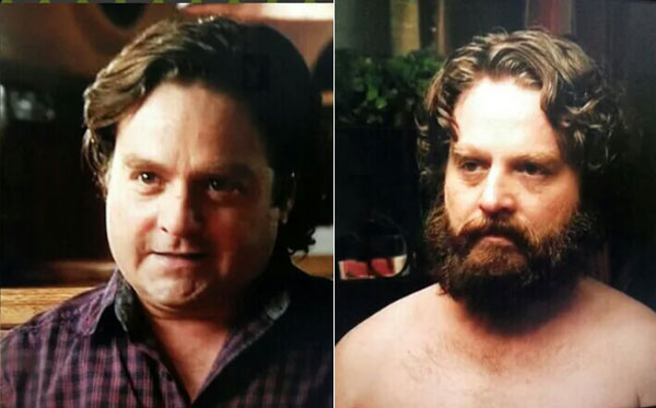 Zach-Galifianakis-with-and-without-beard