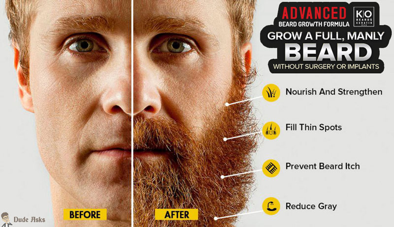 beard growth formula