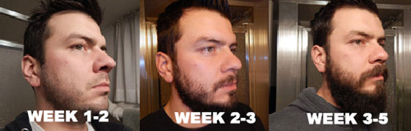 beard-growth-stages